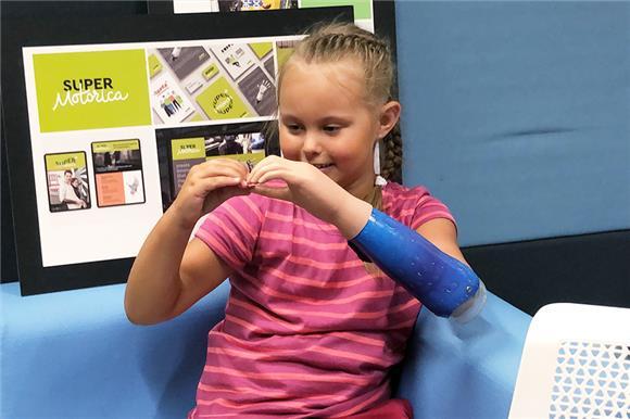 Семилетнему ребенку впервые сделали бионическую руку