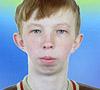 Володя Калинин, 16 лет, патология верхней и нижней челюстей, необходимо ортодонтическое лечение. 30520 руб.