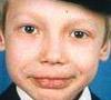 Сережа А., 13 лет, диабет, необходим глюкометр и тест-полоски. 19140 руб.