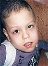 Алексей Ягловский, симптоматическая эпилепсия, срочно требуется курсовое лечение, 199320 руб.