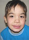 Ильдар Каримов, детский церебральный паралич, сильная спастика ног, необходима установка нейростимулятора, 1100000 руб.