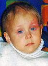 Вика Смирнова, злокачественная опухоль — нейробластома забрюшинного пространства 4 стадии, спасут лекарства и трансплантация костного мозга, 3670500 руб.