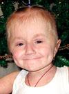 Лиза Лисова, несовершенный остеогенез, спасет операция, 700000 руб.