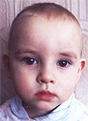 Дима Андреев, послеожоговые рубцы шеи и подмышки, спасет многоэтапная хирургия, 345800 руб.