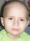 Вадим Горбачев, злокачественная опухоль – нейробластома заднего средостения 4 стадии, спасет трансплантация костного мозга и химиотерапия, 3900000 руб.