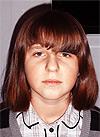Лена Кульпичева, врожденный пигментно-волосатый невус на лице, спасет операция, 348000 руб.