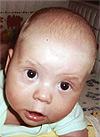 Саша Малицын, аплазия (недоразвитие) пальцев левой кисти, спасет операция, 681800 руб.