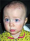 Диана Мурзина, 1 год, уникоронарный синостоз справа, спасет операция по реконструкции черепа. 291600 руб.