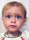 Лиза Шмарова, спасут терапия радиоактивным йодом и трансплантация костного мозга, 9851840 руб.