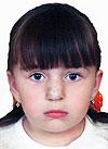 Фатима Гаджиева, рубцовая деформация носа, требуется операция, 255000 руб.