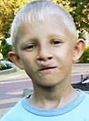 Богдан Тополенко, двусторонняя расщелина верхней губы и нёба, нёбно-глоточная недостаточность, ринолалия (гнусавость), сужение зубных рядов, требуется ортодонтическое и логопедическое лечение, 215000 руб.