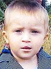 Никита Волков, врожденная двусторонняя расщелина верхней губы и нёба, нёбно-глоточная недостаточность, ринолалия (гнусавость), требуется лечение, 135000 руб.