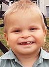Коля Якимов, врожденная двусторонняя косолапость, рецидив, требуется лечение, 155000 руб.