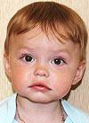 Стасик Макаров, послеожоговые рубцы левого плеча, требуется лечение, 244000 руб.