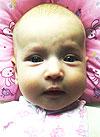 Аня Видякова, врожденная левосторонняя косолапость, требуется лечение по методу Понсети, 120000 руб.
