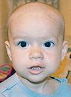 Варя Монахова, гиперплазия кровеносных сосудов лица, требуется лечение, 280000 руб.