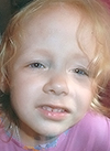 Галя Сударева, сужение зубных рядов, требуется ортодонтическое лечение, 100000 руб.