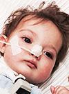 Даниэль Тиханов, врожденный порок развития трахеи и начальных отделов главных бронхов, требуется лечение в клинике Хелиос (Геестахт, Германия), 3979860 руб.