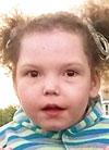 Арина Кугубаева, симптоматическая эпилепсия, требуется установка стимулятора вагуса (блуждающего нерва), 1200150 руб.