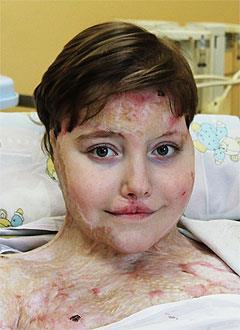 Лера Мигунова, 16 лет, последствия тяжелой травмы и обширного ожога, требуются лекарства, перевязочные материалы и газосмесительная аппаратура для наркоза. 1523946 руб.