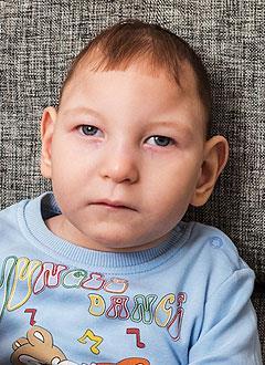 Ростик Семенов, 2 года, двусторонняя тугоухость 4-й степени, требуются слуховые аппараты. 260400 руб.