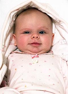 Есения Палатова, 7 месяцев, деформация черепа, требуется лечение специальными шлемами. 180000 руб.