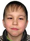 Радмир Насибулин, двусторонняя тугоухость 4-й степени, требуются слуховые аппараты, 230756 руб.