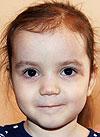 Даша Коновалова, 3 года, болезнь Гиршпрунга, синдром короткой кишки, требуется лечебное питание. 132200 руб.