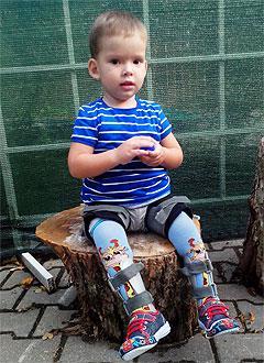 Назар Меньшов, 5 лет, множественные пороки развития, миелодисплазия (врожденное недоразвитие спинного мозга), двусторонний вывих бедер, деформация стоп, требуется инвалидная коляска. 172298 руб.