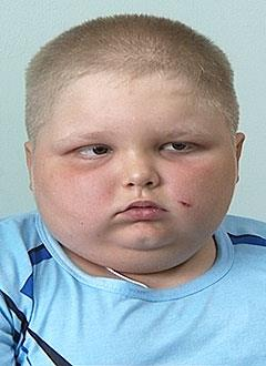 Тимур Дергунов, 9 лет, гормонозависимый нефротический синдром, спасет лекарство. 99400 руб.
