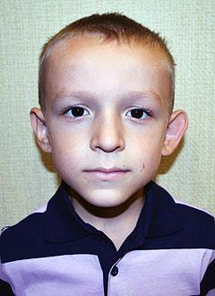 Рамзиль Гыйлфанов, 5 лет, двусторонняя тугоухость 2-й степени, требуются слуховые аппараты. 221015 руб.