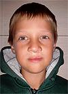 Миша Гендугов, 7 лет, рубцовая деформация верхней губы и носа, расщелина альвеолярного отростка, недоразвитие верхней челюсти, требуется ортодонтическое лечение. 200000 руб.