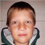 Миша Гендугов, рубцовая деформация верхней губы и носа, расщелина альвеолярного отростка, недоразвитие верхней челюсти, требуется ортодонтическое лечение, 200000 руб.