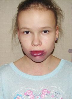 Ксюша Комарова, 11 лет, мальформация (опухолевые образования) сосудов лица, языка, шеи, требуется курс импульсной фототерапии под общим наркозом. 300000 руб.