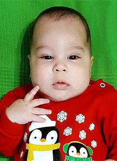 Лева Кондрашов, 3 месяца, врожденная двусторонняя косолапость, требуется лечение по методу Понсети. 151900 руб.